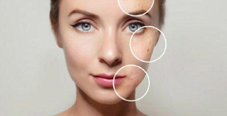 مهمترین دلایل بروز لک های پوستی