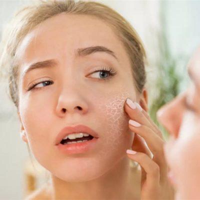 چگونه از شر خشکی پوست بدن و صورت خلاص شویم؟